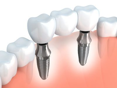 Image of how dental implants are inserted into the jaw.