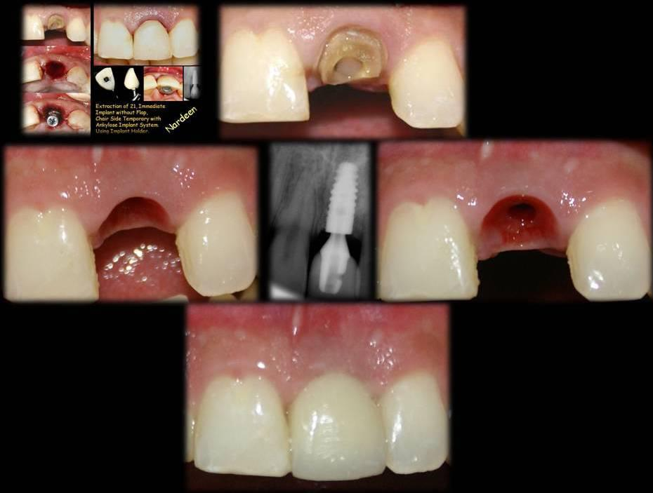 Gallery Dental Implants Uptown Guelph Dental