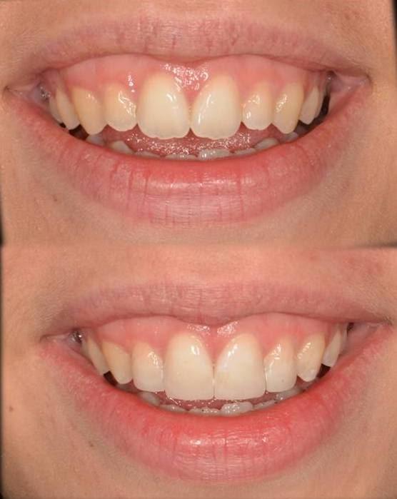 Gummy Smile Dental Case