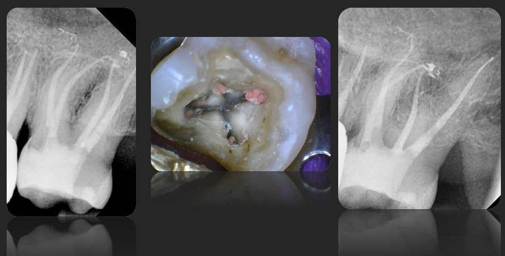Root Canal Treatement Case