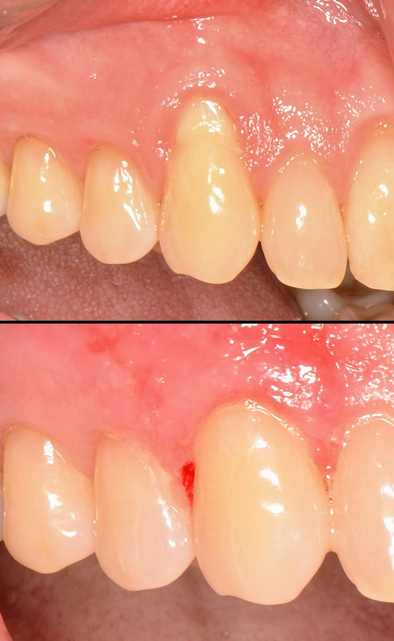 Root Coverage Dental Case