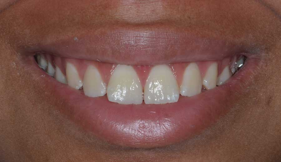 Gummy Smile Dental Case