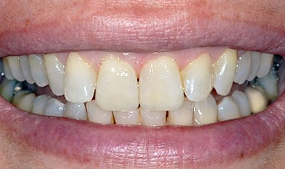 Worn Dentition Case