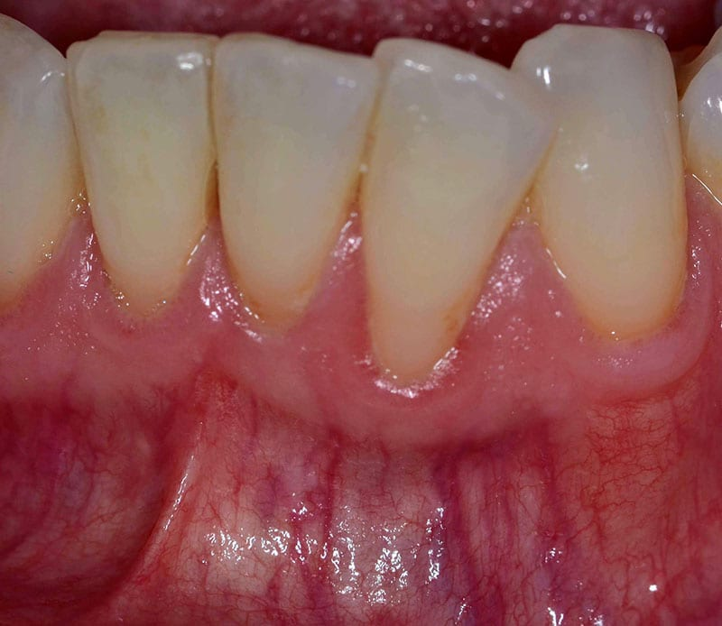 Root Coverage Dental Case