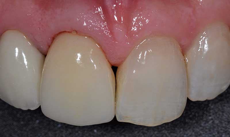 crown and bridge dental case