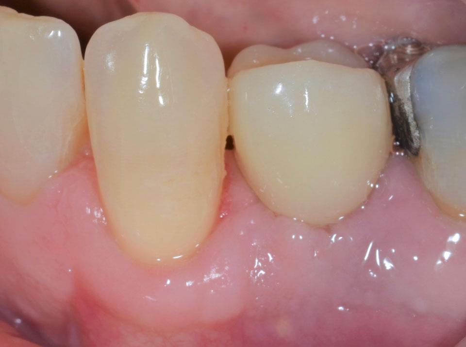 Dental Implant Case 47 - After