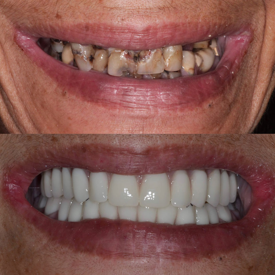 Image result for dental implants before and after