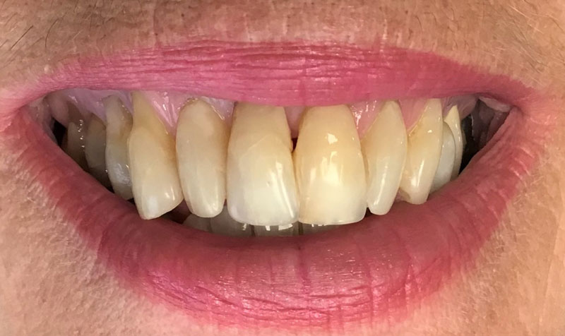 Dental Bonding Case - Before