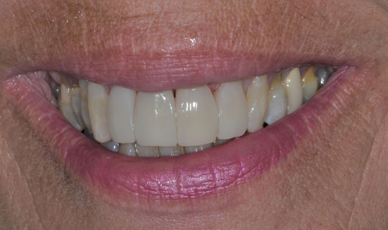 Dental Bonding Case - After