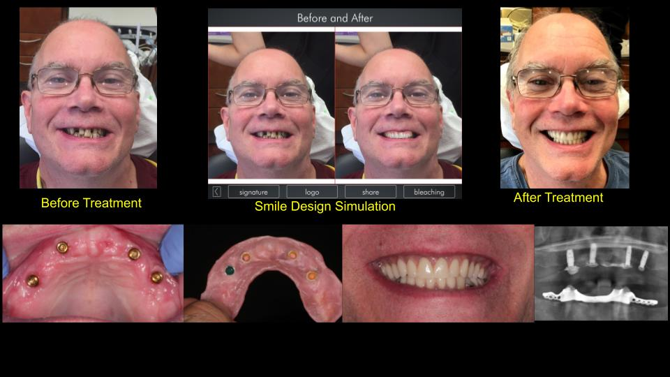 Dental Implant Case 51 - Before & After
