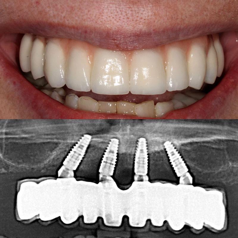 Dental Implant Case 52