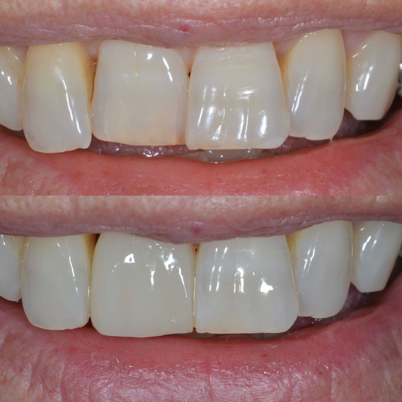 Dental Bonding Case