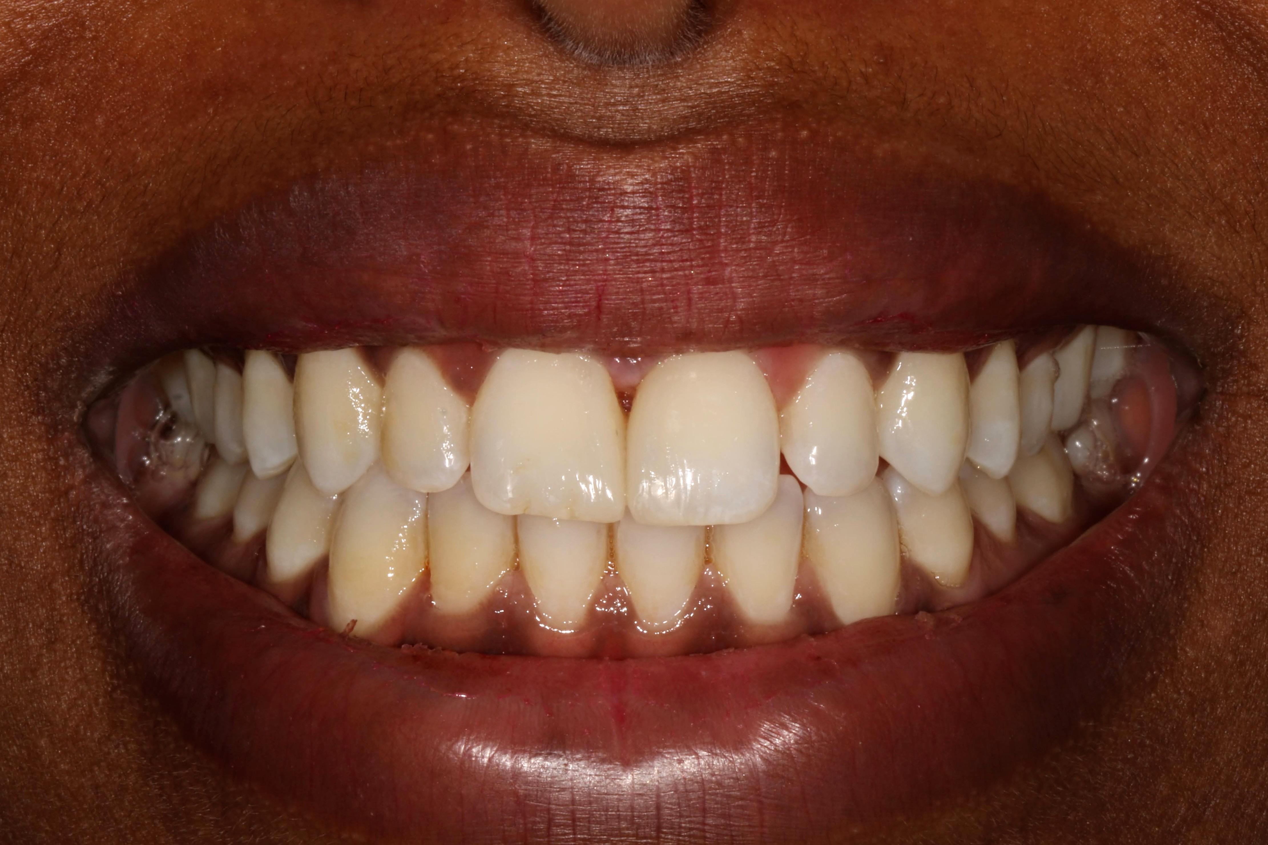 Dental Bonding Case