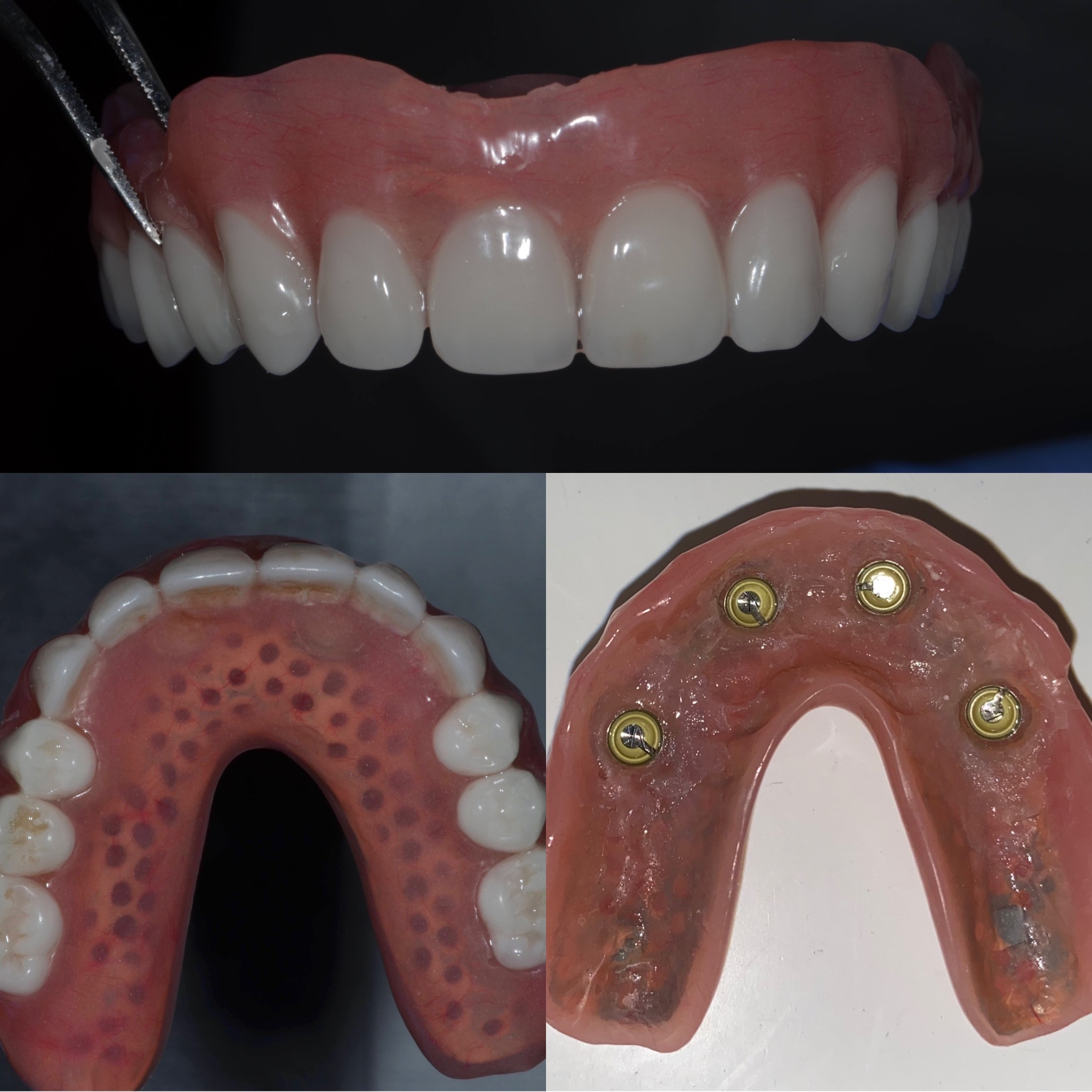 Dental Implant Case 53