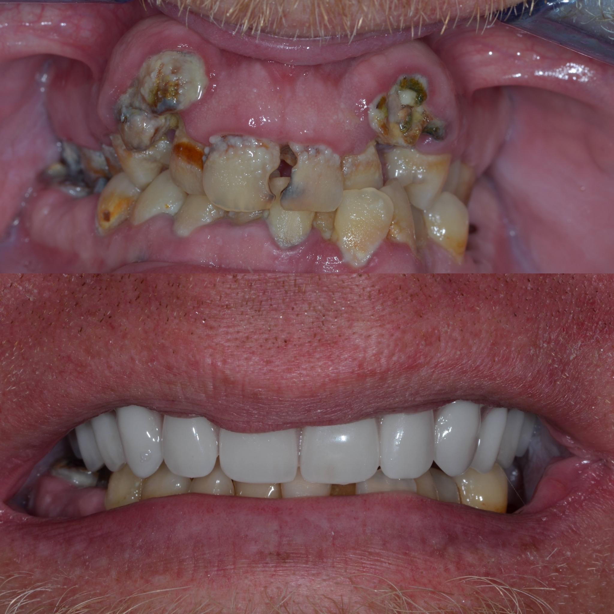 Dental Implant Case 53