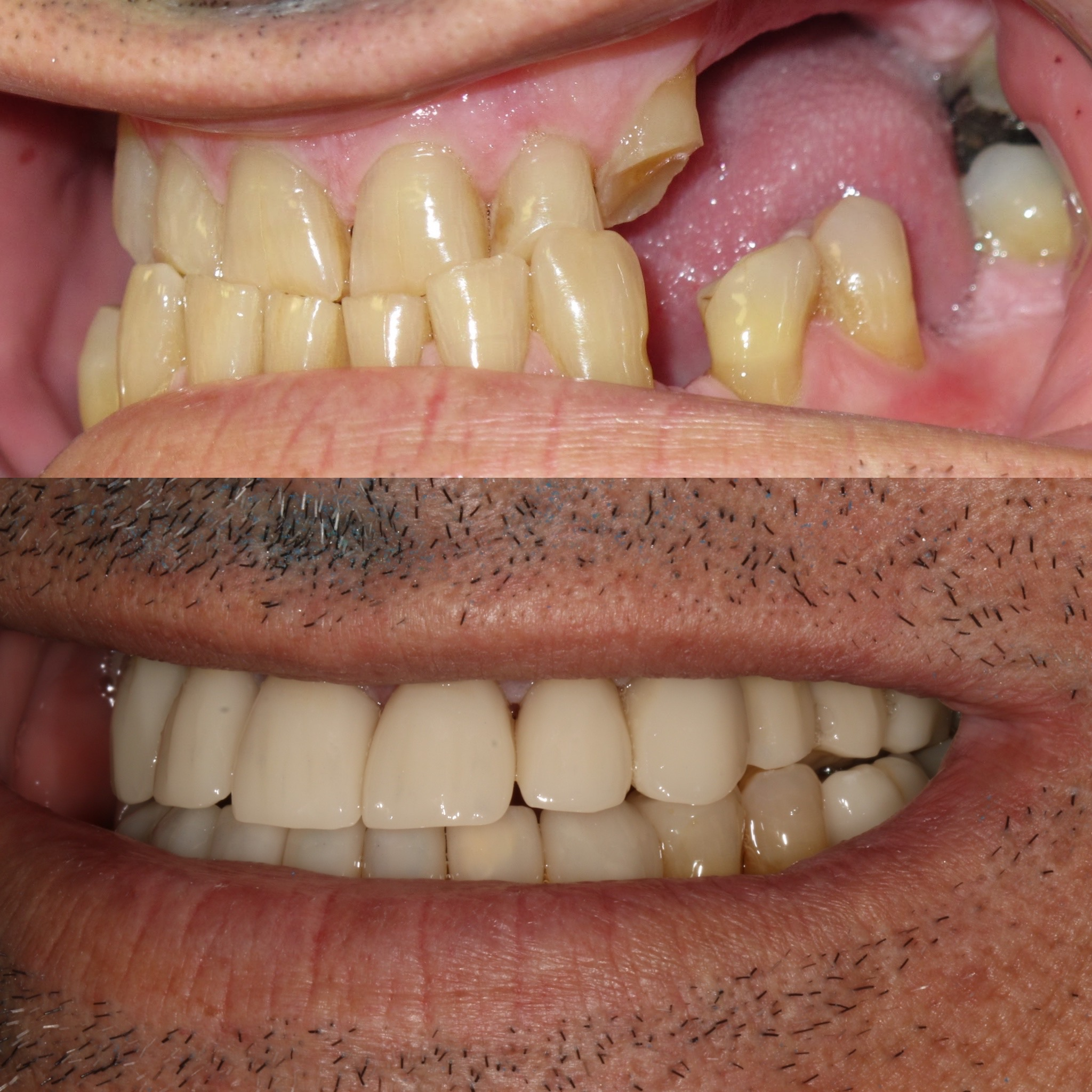 Dental Implant Case 54