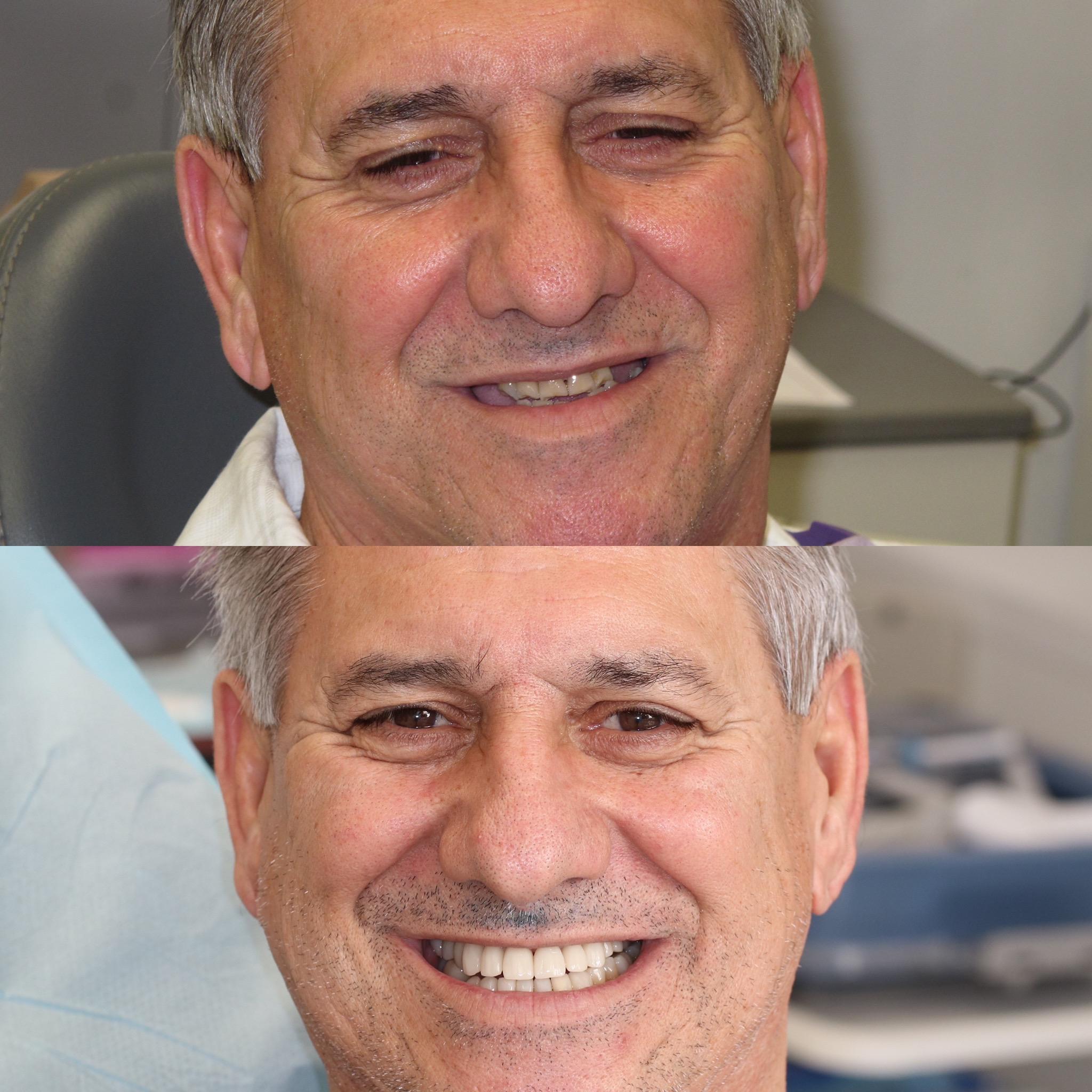 Dental Implant Case 54