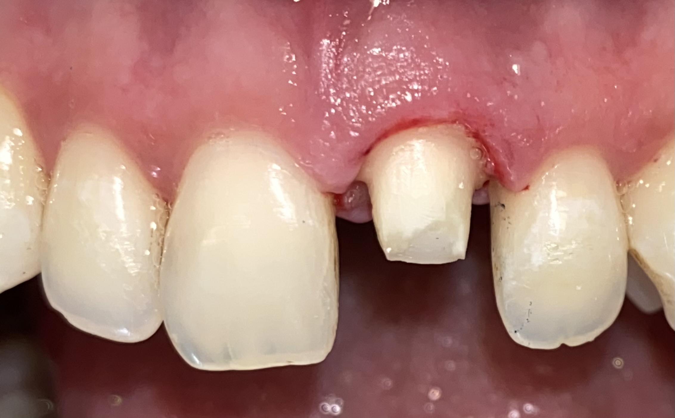 Dental Case