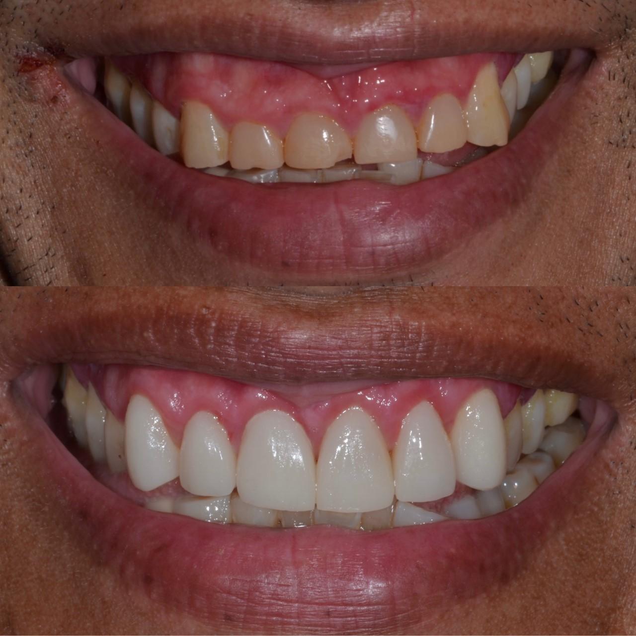 CEREC Dental Case